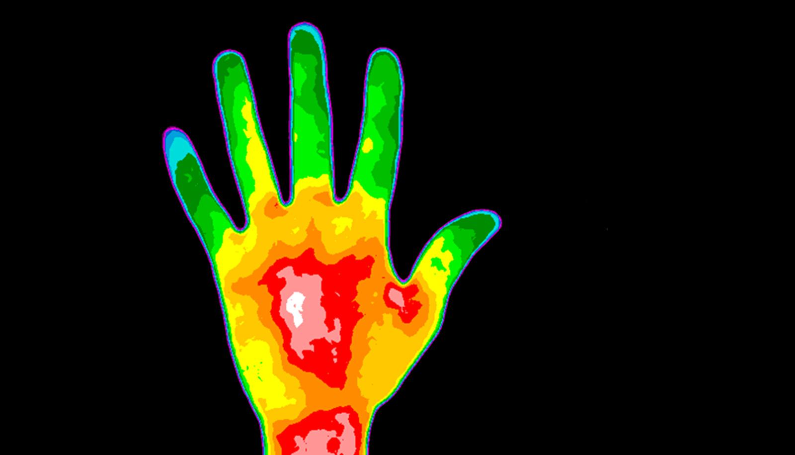 thermographic image of a hand