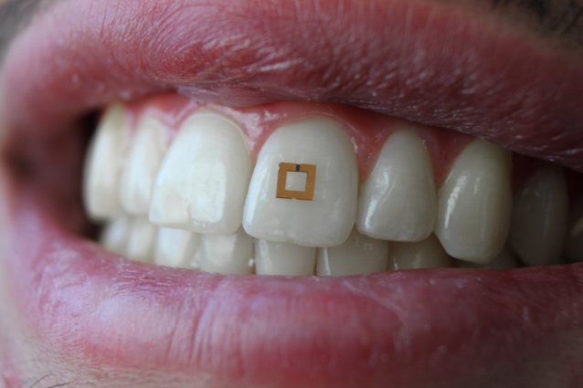 A gold, square sensor which can wirelessly connect to a mobile device is mounted on a person's tooth.