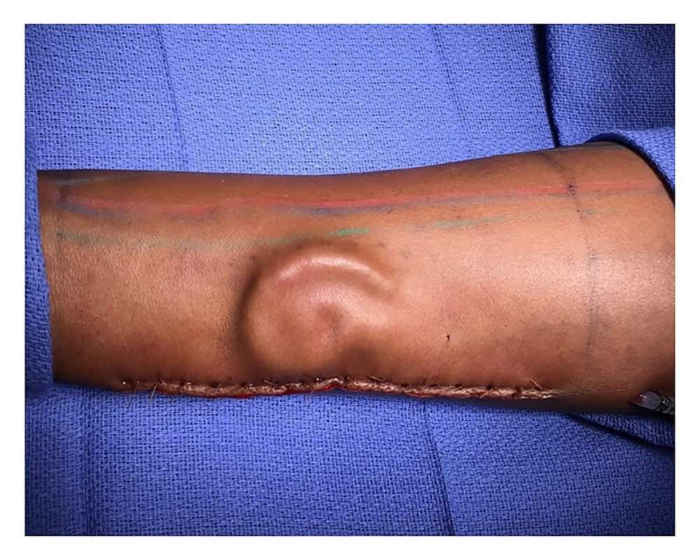 the shape of an ear on an arm