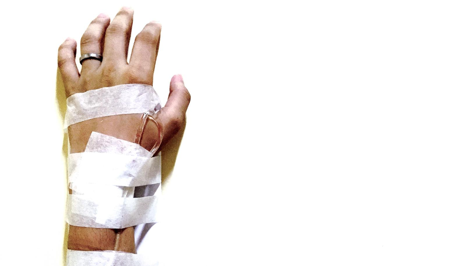 IV and tape on hand on white