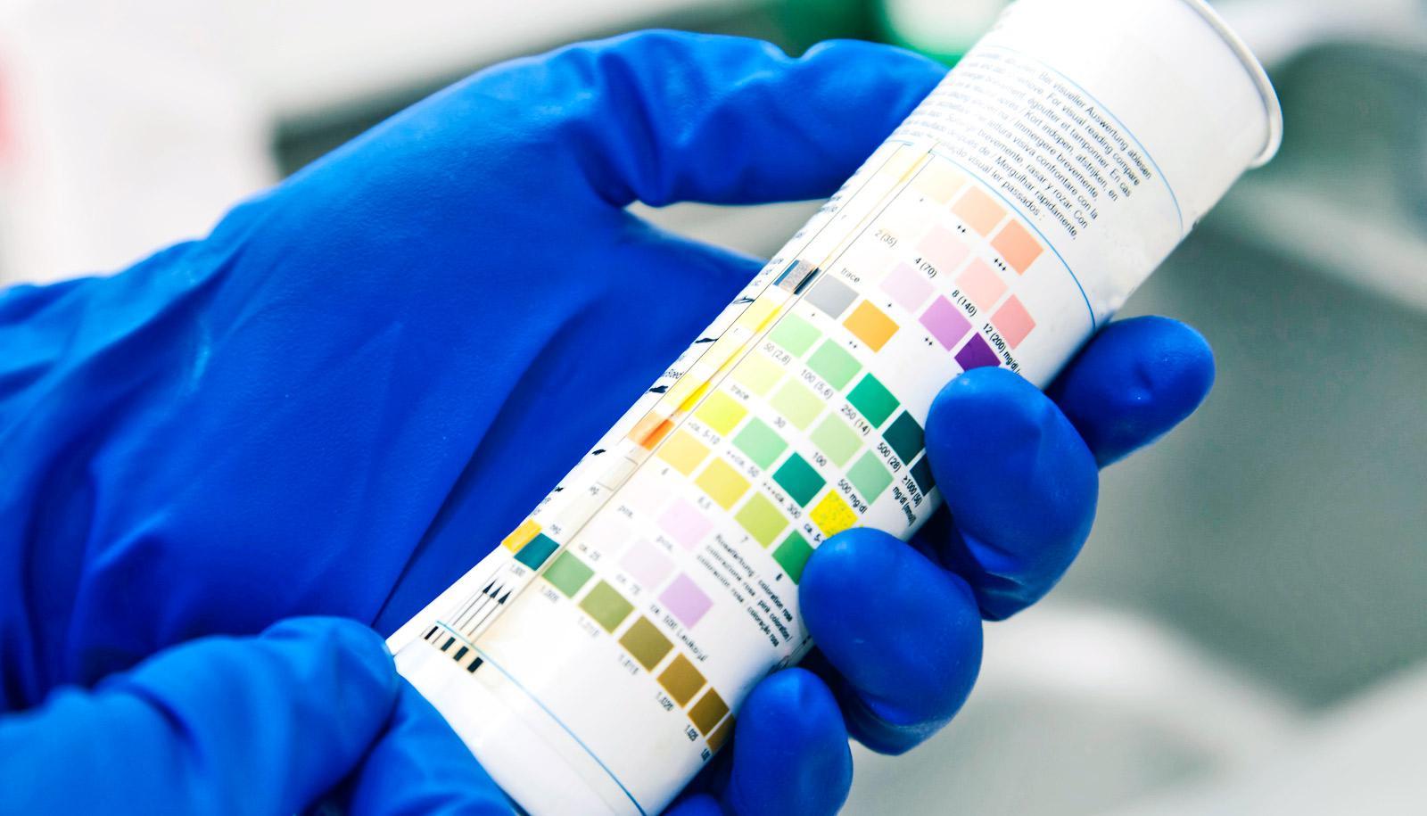 blue gloved hands hold urine test strips