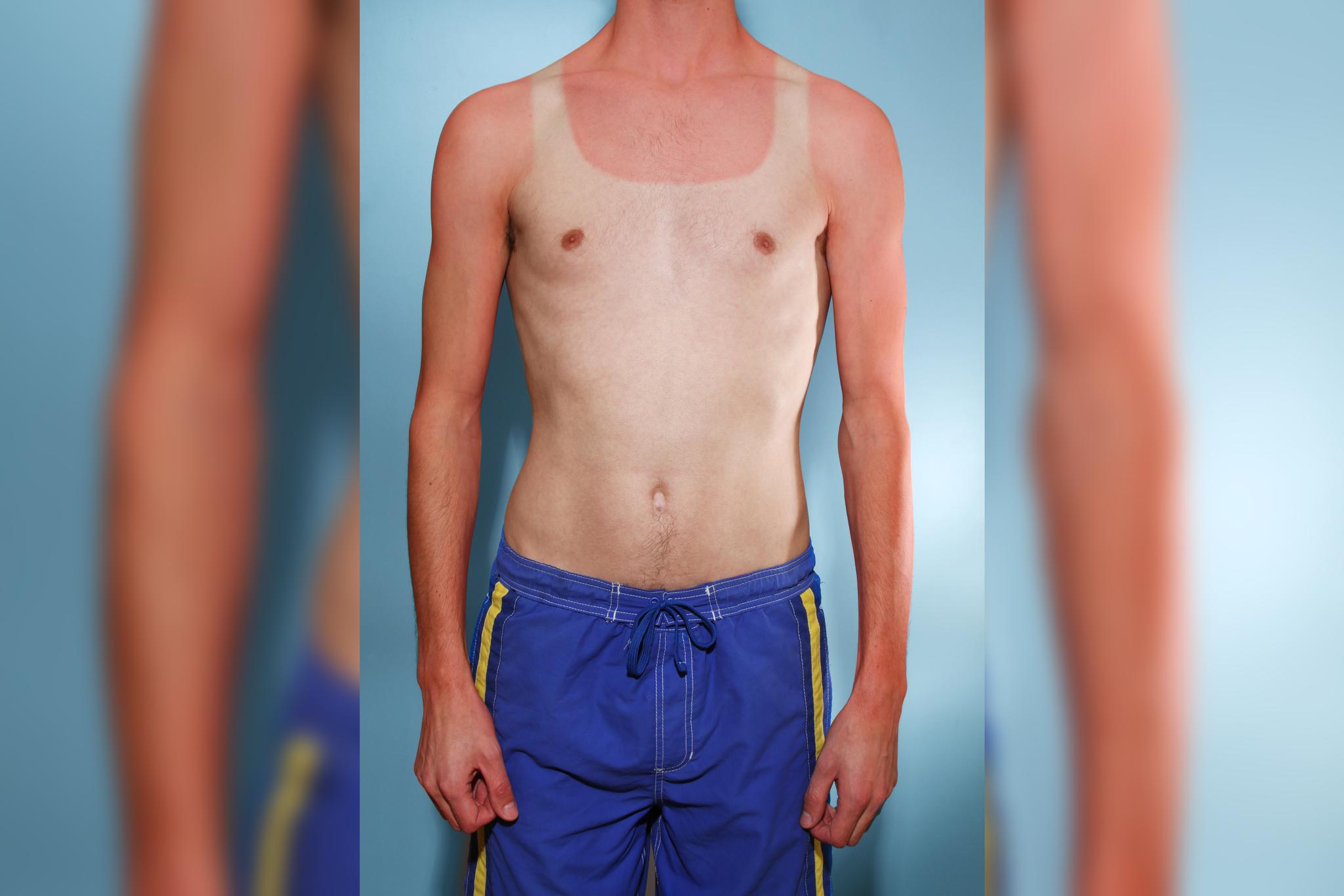 Researchers found that vitamin D decreased the symptoms of sunburn after the fact. But it's still best to wear sunscreen and protective clothing.