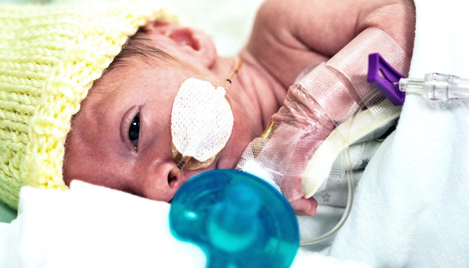 A premature baby is connected to medical equipment