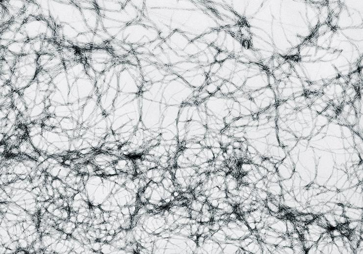 amyloid fibers
