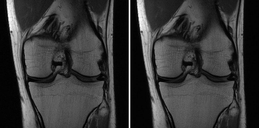 Two images of the same knee. The image on the right was created by AI, while the one on the left represents the conventional approach.