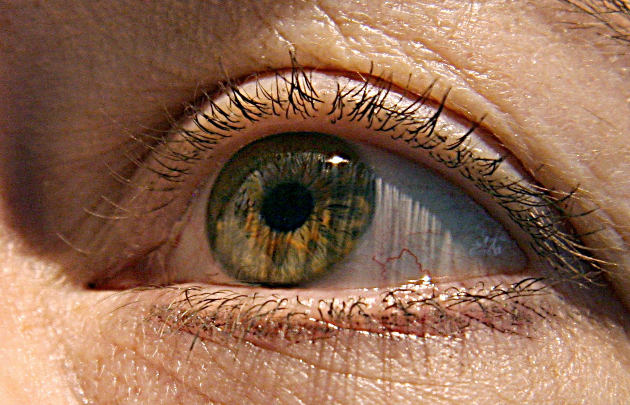 A new gene therapy called Luxturna was being considered by the FDA on Thursday to treat retinal dystrophy, which can lead to blindness. If approved, it would be the first-ever gene replacement therapy.