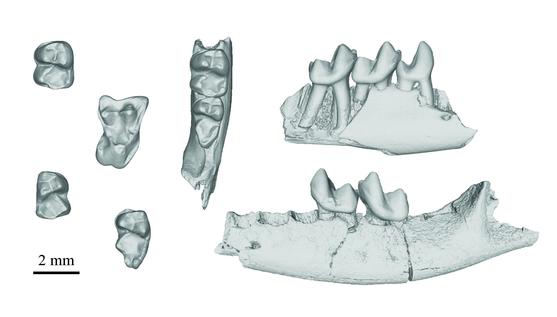 Several teeth, including some connected to jaw bones