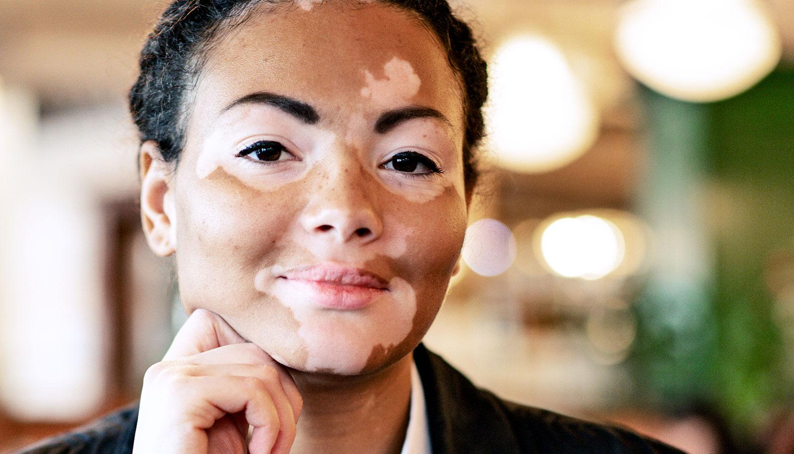A woman with Vitiligo sits in a cafe with her hand on her chin