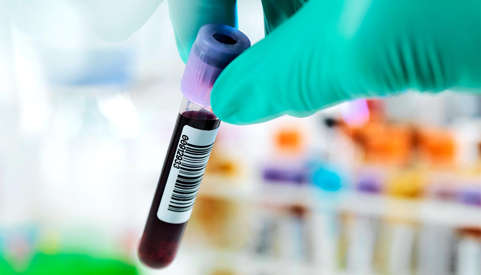 A health worker wearing green gloves picks up a blood test vial