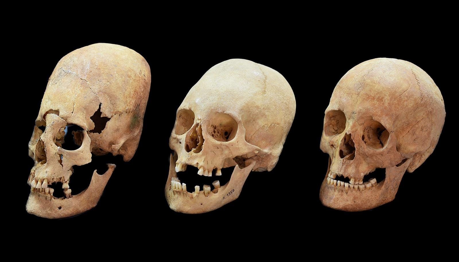 deformed, intermediate, and normal skulls