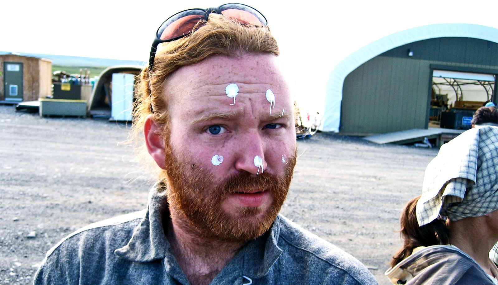A red-haired, fair-skinned man has dots of white sunscreen on his sunburned face