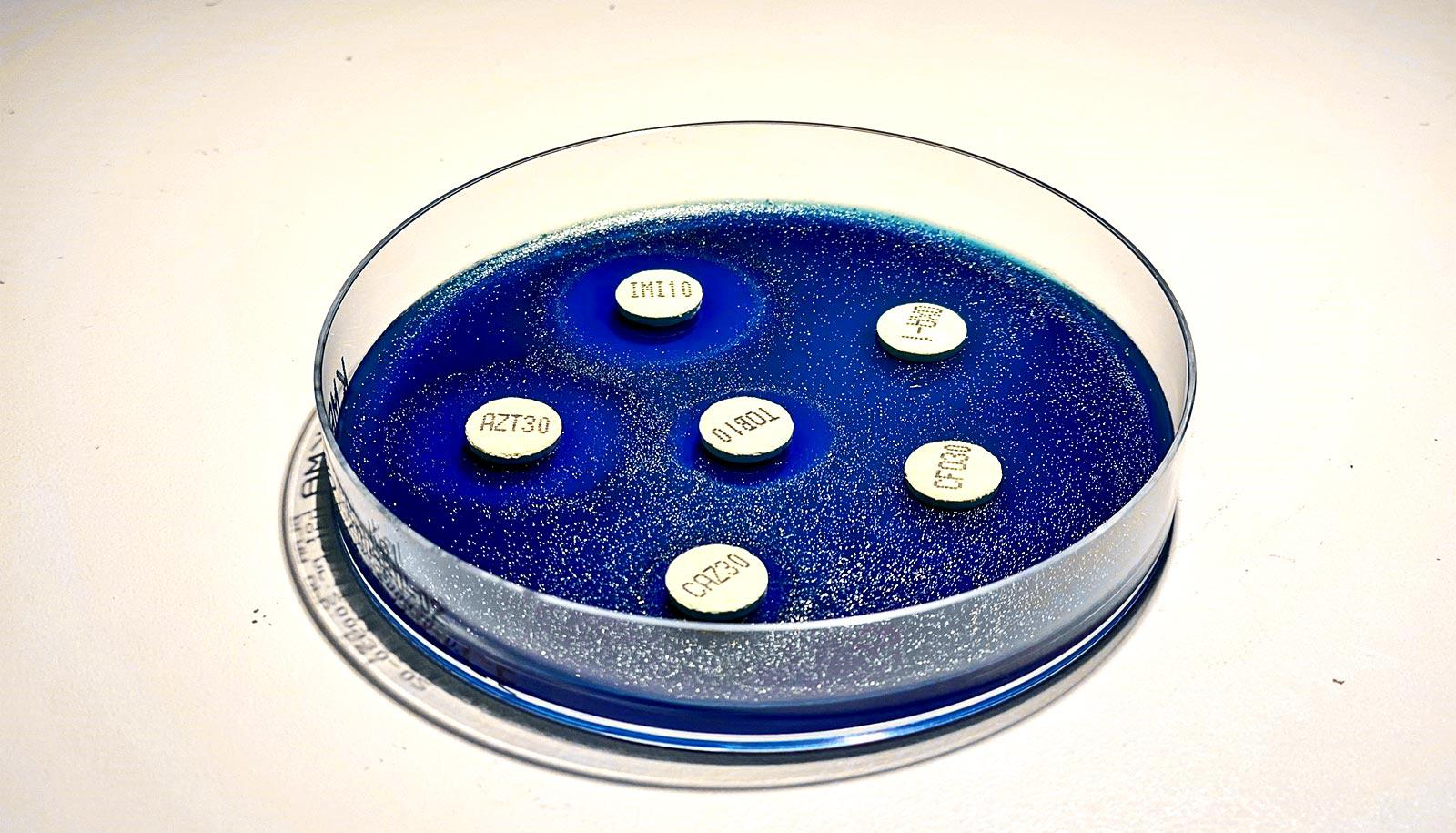 A petri dish has what look like small circles in a blue gel
